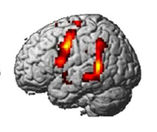 Moved by music the role of cerebral resonance behaviour for Mirror neurons